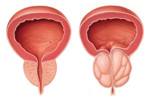 Urenol, รีวิว, pantip, พันทิป